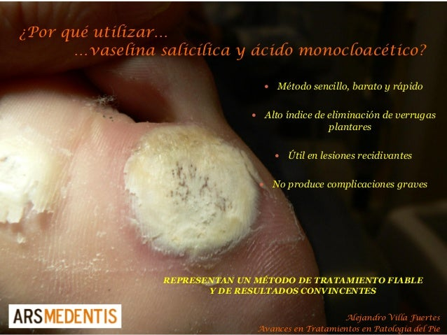 ¿Por qué utilizar… …vaselina salicílica y ácido monocloacético? REPRESENTAN UN MÉTODO DE TRATAMIENTO FIABLE Y DE RESULTADO...