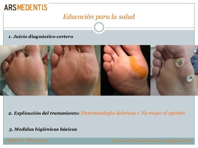Educación para la salud 1. Juicio diagnóstico certero 3. Medidas higiénicas básicas 2. Explicación del tratamiento: Sintom...