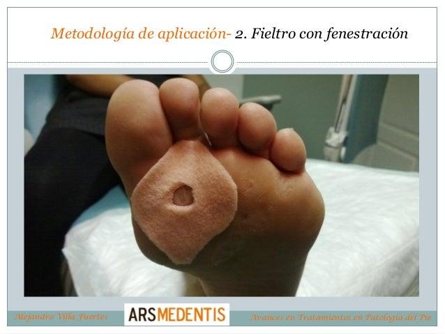 Metodología de aplicación- 2. Fieltro con fenestración Alejandro Villa Fuertes Avances en Tratamientos en Patología del Pie