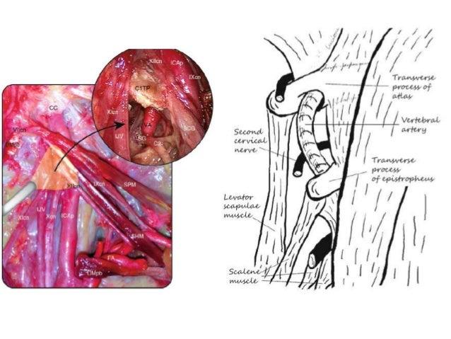Vertebral Artery 360