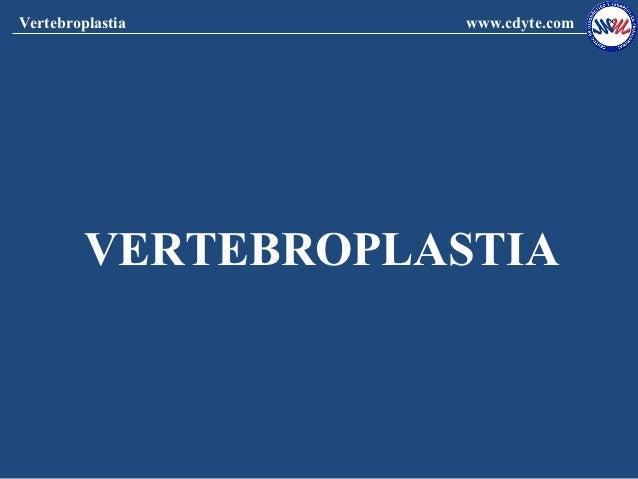 Vertebroplastia      www.cdyte.com         VERTEBROPLASTIA