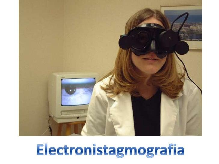 Resultado de imagen de Electronistagmografía