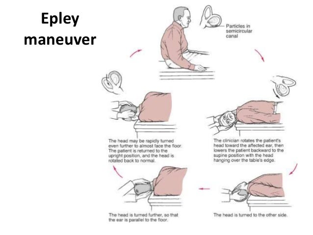 the epley manoeuvre instructions