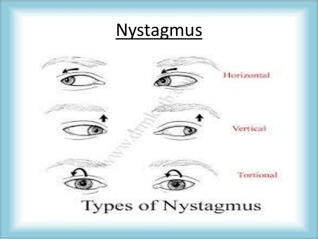 Nystagmus and Nystagmoid Movements