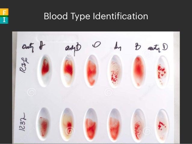 Blood Type Identification