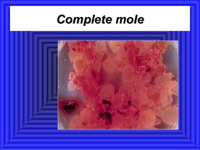 Complete mole