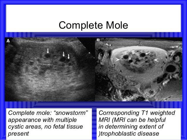 """Complete MoleComplete mole: """"snowstorm""""      Corresponding T1 weightedappearance with multiple        MRI (MRI can be help..."""