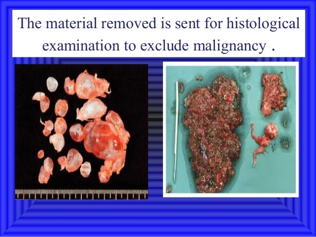 The material removed is sent for histological   examination to exclude malignancy .