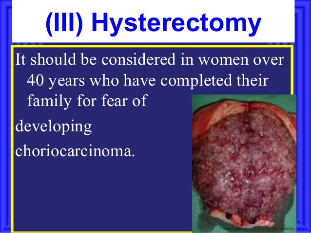 (III) HysterectomyIt should be considered in women over  40 years who have completed their  family for fear ofdevelopingch...