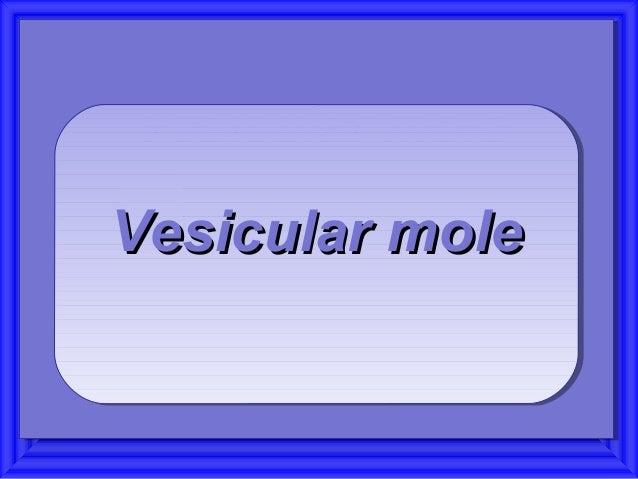 Vesicular moleVesicular moleVesicular moleVesicular mole