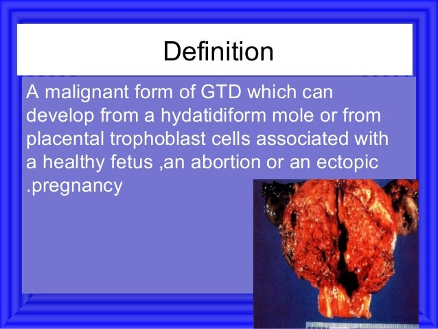 Symptoms and signs•   Bleeding•   Infection•   Abdominal swelling•   Vaginal mass•   Lung symptoms•   Symptoms from other ...