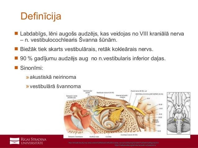 Vestibulokohleārā nerva neirinoma Slide 2