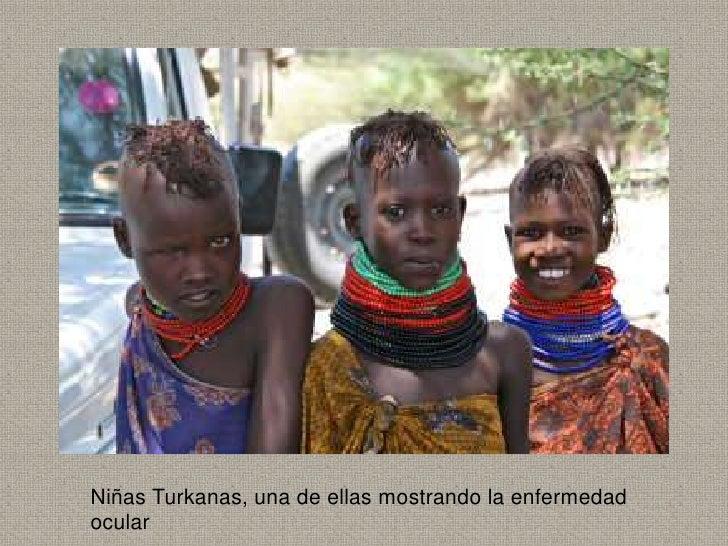 Niñas Turkanas, una de ellas mostrando la enfermedadocular