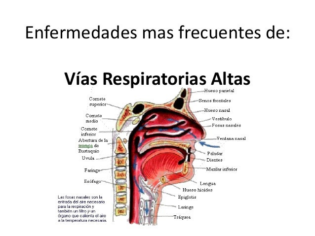 Enfermedades mas frecuentes de: Vías Respiratorias Altas
