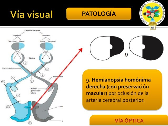 HEMIANOPSIA NASAL PDF DOWNLOAD