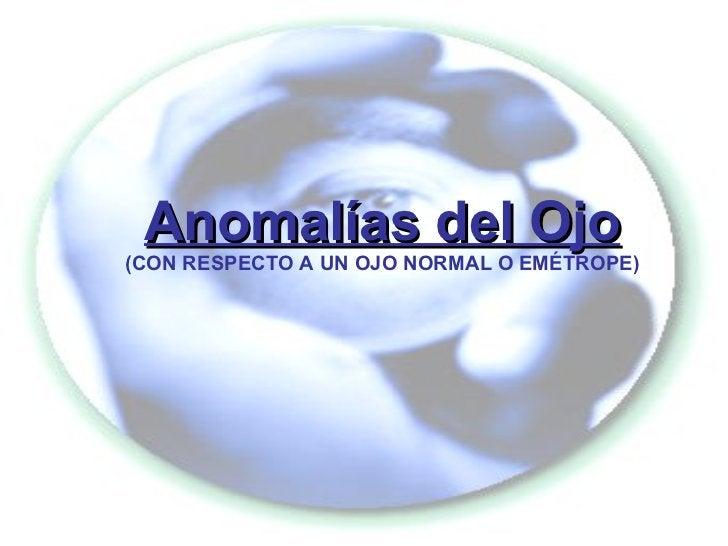 Anomalías del Ojo (CON RESPECTO A UN OJO NORMAL O EMÉTROPE)