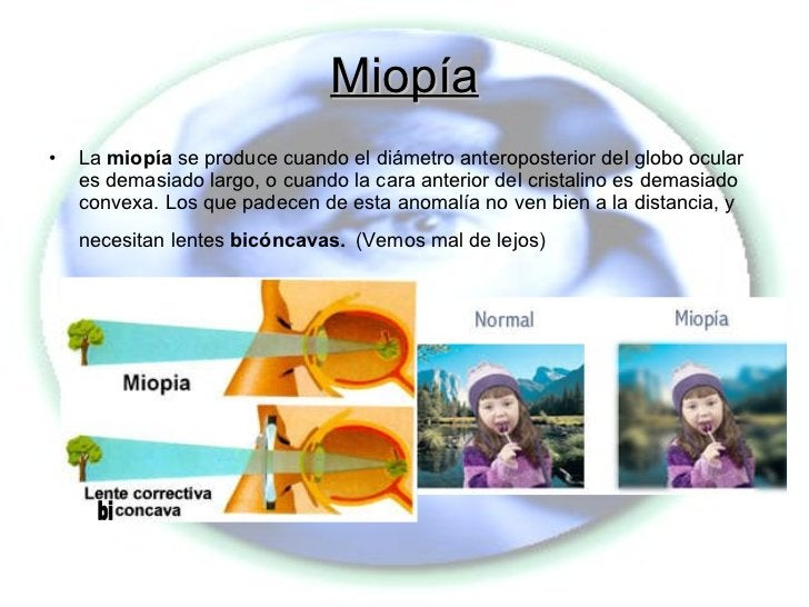Miopía <ul><li>La  miopía  se produce cuando el diámetro anteroposterior del globo ocular es demasiado largo, o cuando la ...