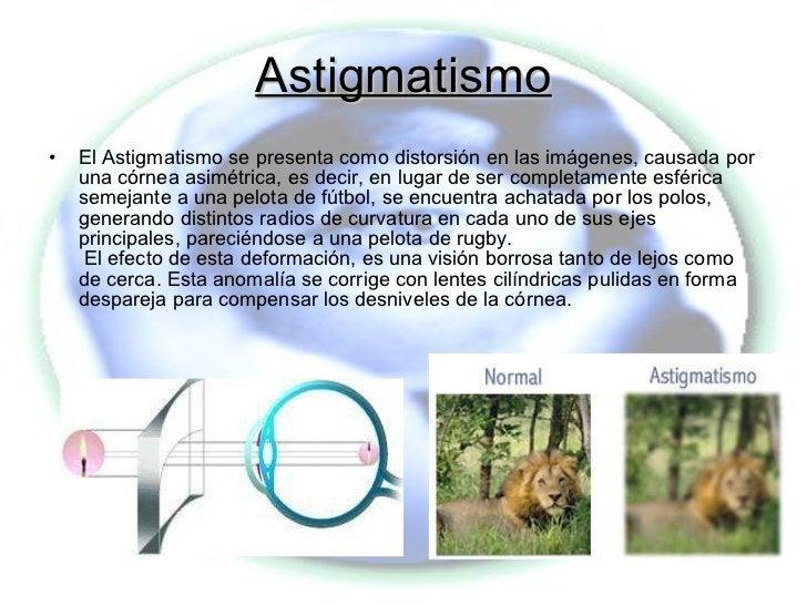Astigmatismo <ul><li>El Astigmatismo se presenta como distorsión en las imágenes, causada por una córnea asimétrica, es de...