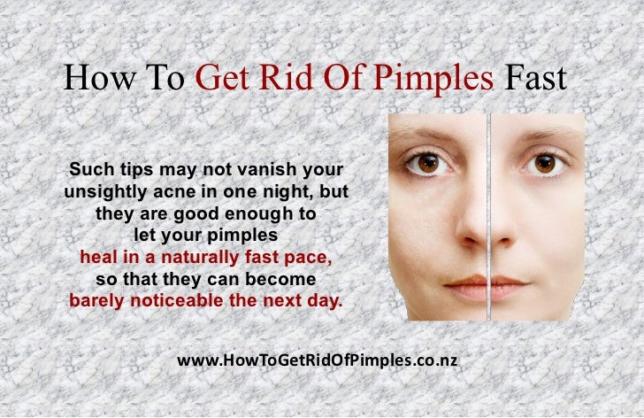 How To Get Rid Of Pimples Naturally In One Day