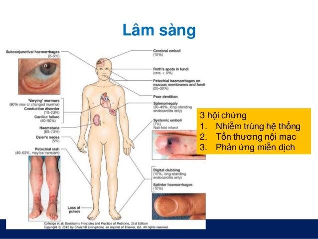Lâm sàng 3 hội chứng 1. Nhiễm trùng hệ thống 2. Tổn thương nội mạc 3. Phản ứng miễn dịch