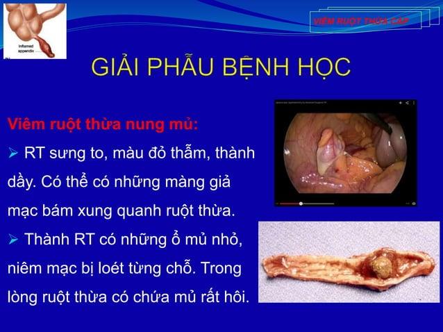 Viêm ruột thừa nung mủ:  RT sưng to, màu đỏ thẫm, thành dầy. Có thể có những màng giả mạc bám xung quanh ruột thừa.  Thà...