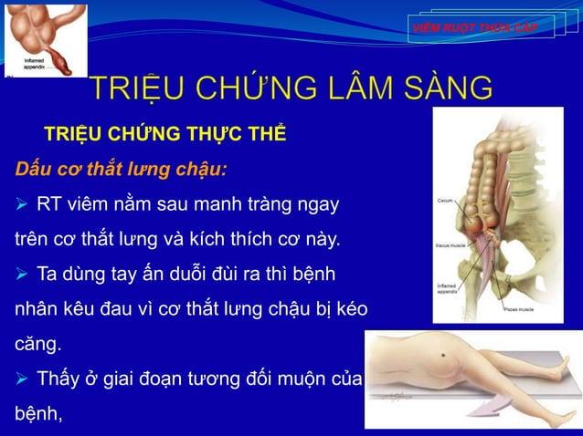 TRIỆU CHỨNG THỰC THỂ Dấu cơ thắt lưng chậu:  RT viêm nằm sau manh tràng ngay trên cơ thắt lưng và kích thích cơ này.  Ta...