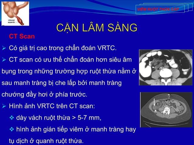 CT Scan  Có giá trị cao trong chẩn đoán VRTC.  CT scan có ưu thế chẩn đoán hơn siêu âm bụng trong những trường hợp ruột ...