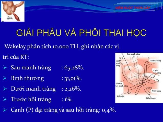 Wakelay phân tích 10.000 TH, ghi nhận các vị trí của RT:  Sau manh tràng : 65,28%.  Bình thường : 31,01%.  Dưới manh tr...