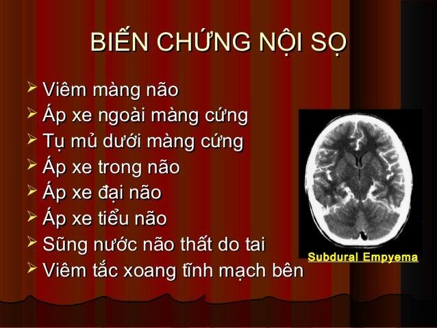BIẾN CHỨNG NỘI SỌBIẾN CHỨNG NỘI SỌ  Viêm màng nãoViêm màng não  Áp xe ngoài màng cứngÁp xe ngoài màng cứng  Tụ mủ dưới ...