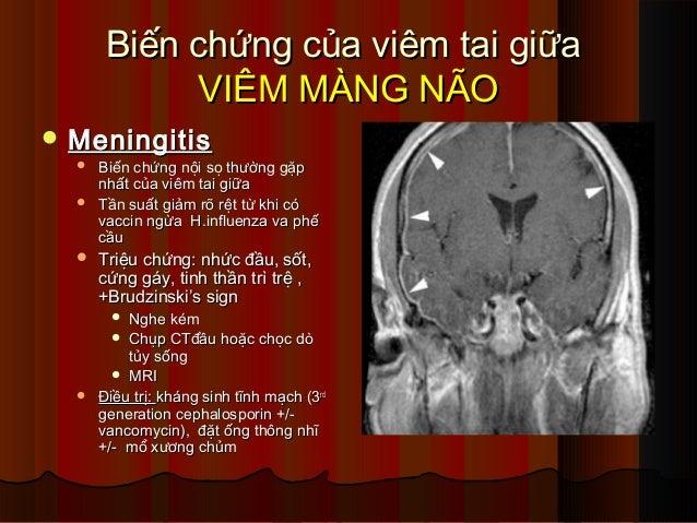 Biến chứng của viêm tai giữaBiến chứng của viêm tai giữa VIÊM MÀNG NÃOVIÊM MÀNG NÃO  MeningitisMeningitis  Biến chứng nộ...