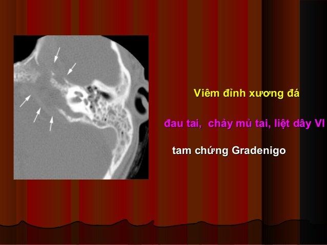 Viêm đỉnh xương đáViêm đỉnh xương đá đau tai, chảy mủ tai, liệt dây VIđau tai, chảy mủ tai, liệt dây VI tam chứng Gradenig...