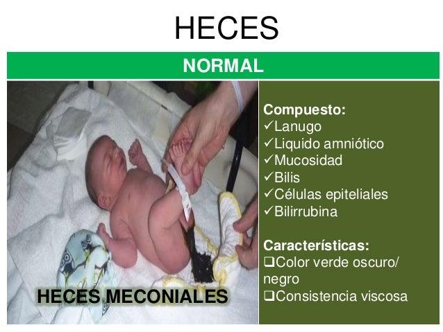 Vigilancia de excretas en el recien nacido e inmunizacion cuidados - Heces color verde bebe 2 meses ...