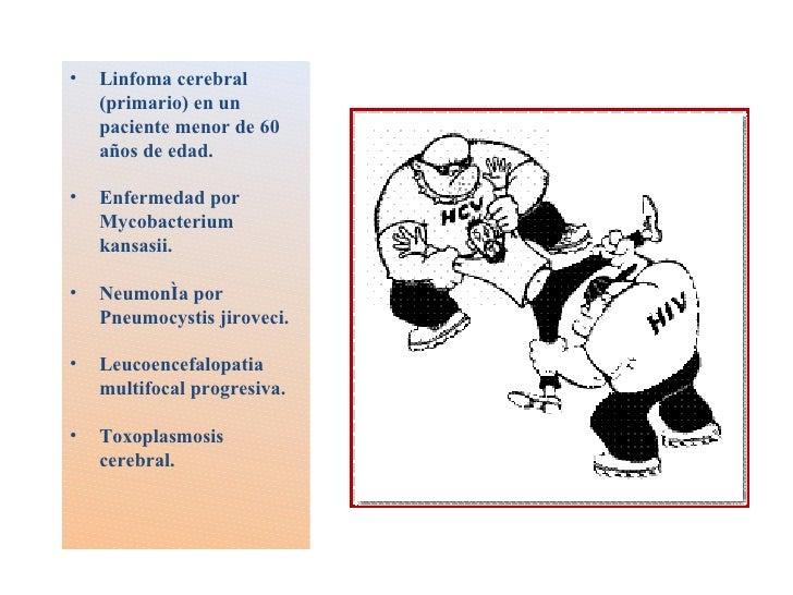 <ul><li>Linfoma cerebral (primario) en un paciente menor de 60 años de edad. </li></ul><ul><li>Enfermedad por Mycobacteriu...