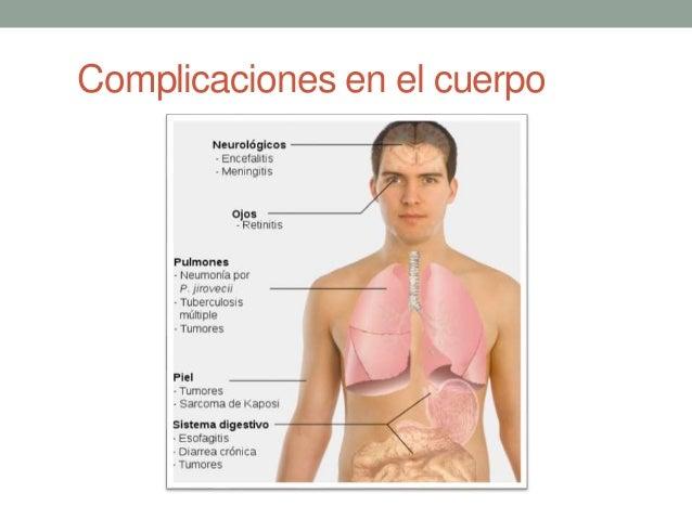 Complicaciones en el cuerpo