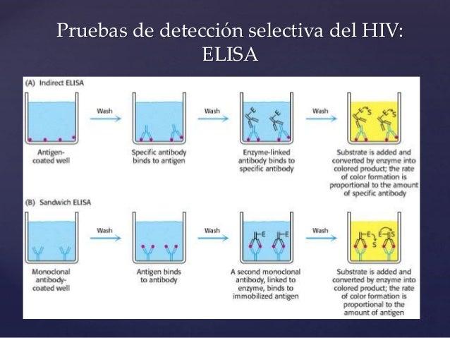 Vih manifestaciones clínicas e infecciones oportunistas