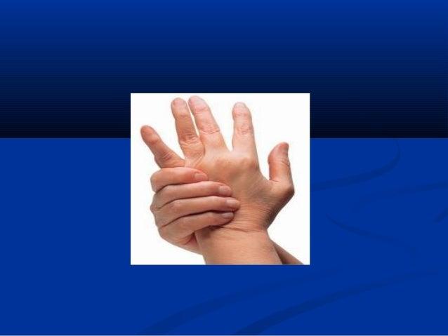 TRIỆU CHỨNG LÂM SÀNGTRIỆU CHỨNG LÂM SÀNG  Diễn biến:Diễn biến: - Viêm khớp nặng dần, tăng dần, phát triển thêmViêm khớp n...