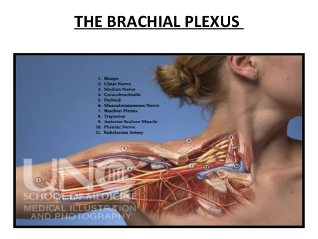 the possible causes of brachial neuritis