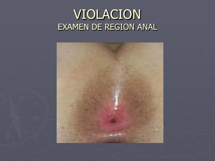 violacion anal