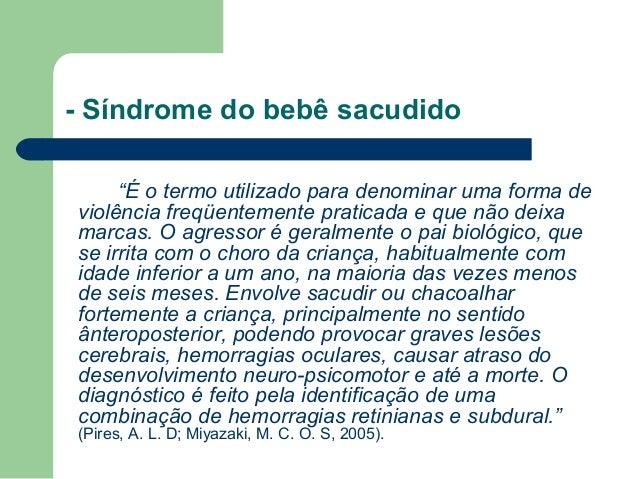 """- Síndrome do bebê sacudido """"É o termo utilizado para denominar uma forma de violência freqüentemente praticada e que não ..."""