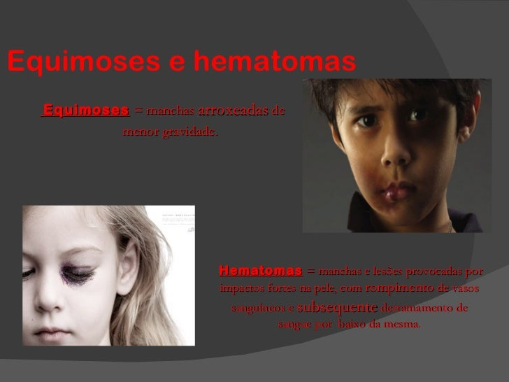 Equimoses e hematomas Equimoses   = manchas  arroxeadas  de menor gravidade.  Hematomas  = manchas e lesões provocadas por...