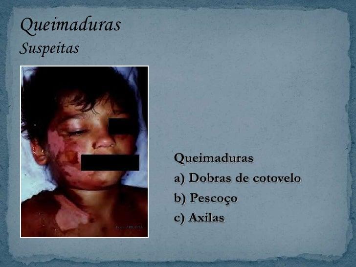 Mente sobre a causa das lesões da criança