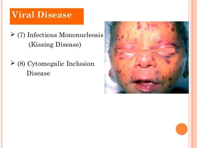 infectious mononucleosis treatment steroids