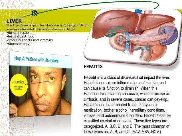 Viral hepatitis Slide 2
