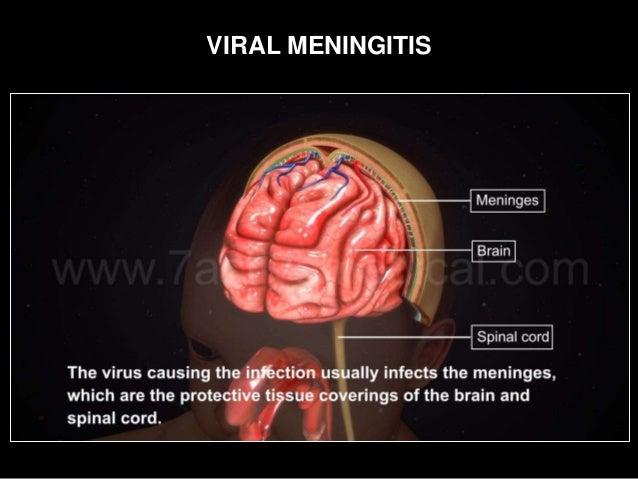viral meningitis related keywords viral meningitis long