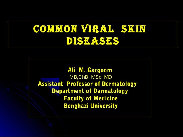 COMMON Viral SkiN    DiSeaSeS          Ali M. Gargoom          MB,ChB. MSc. MDAssistant Professor of Dermatology     Depar...