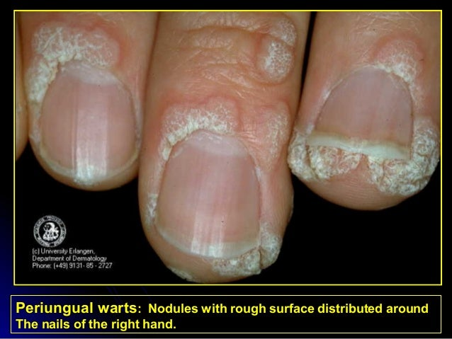 Common Viral Skin Diseases