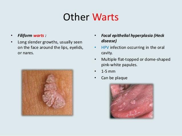 Viral warts