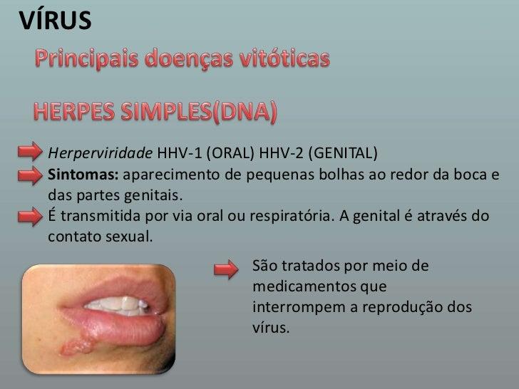 VÍRUS<br />Principais doenças vitóticas<br />HERPES SIMPLES(DNA)<br />HerperviridadeHHV-1 (ORAL) HHV-2 (GENITAL)<br />Sint...