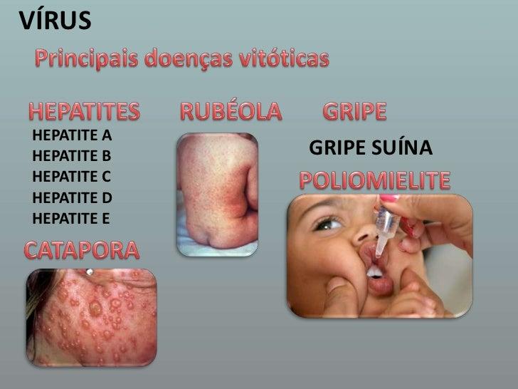 VÍRUS<br />Principais doenças vitóticas<br />HEPATITES <br />RUBÉOLA <br />GRIPE <br />HEPATITE A<br />HEPATITE B<br />HEP...