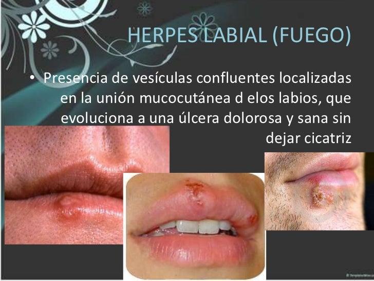 Virus Herpes Simplex Tipo 1 Hsv 1